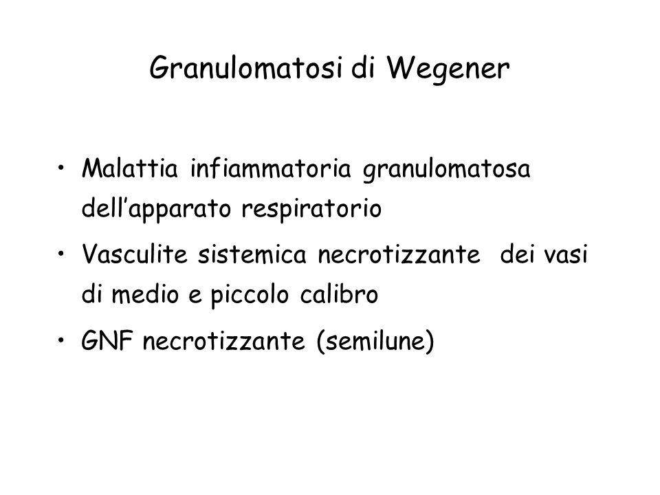 Granulomatosi di Wegener Malattia infiammatoria granulomatosa dellapparato respiratorio Vasculite sistemica necrotizzante dei vasi di medio e piccolo