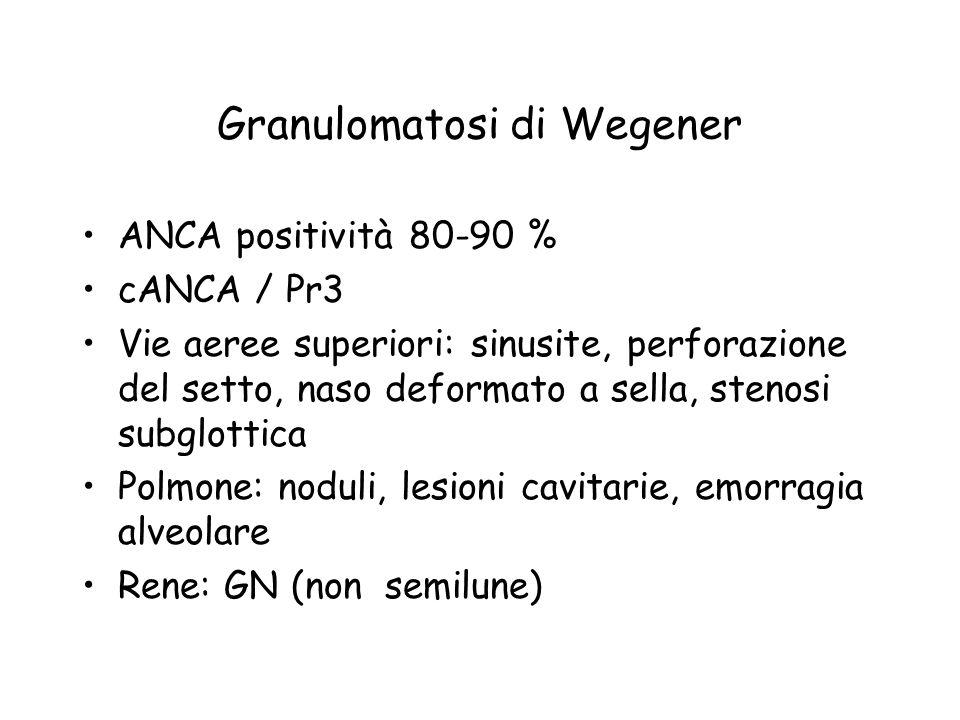 Granulomatosi di Wegener ANCA positività 80-90 % cANCA / Pr3 Vie aeree superiori: sinusite, perforazione del setto, naso deformato a sella, stenosi su