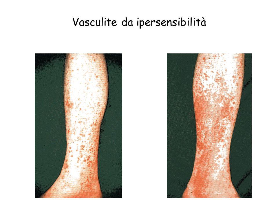 Vasculite da ipersensibilità