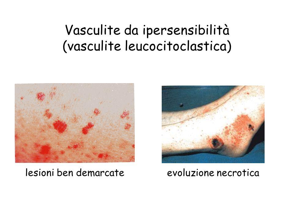Vasculite da ipersensibilità (vasculite leucocitoclastica) lesioni ben demarcate evoluzione necrotica