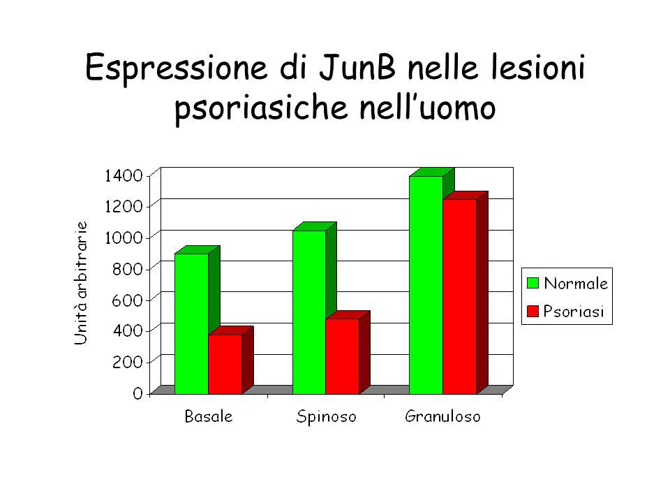 Espressione di JunB nelle lesioni psoriasiche nelluomo