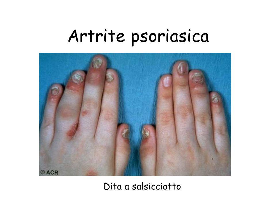 Artrite psoriasica Dita a salsicciotto