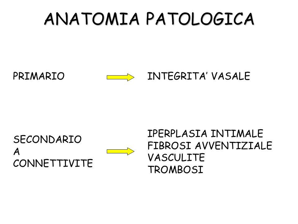 ANATOMIA PATOLOGICA PRIMARIOINTEGRITA VASALE SECONDARIO A CONNETTIVITE IPERPLASIA INTIMALE FIBROSI AVVENTIZIALE VASCULITE TROMBOSI