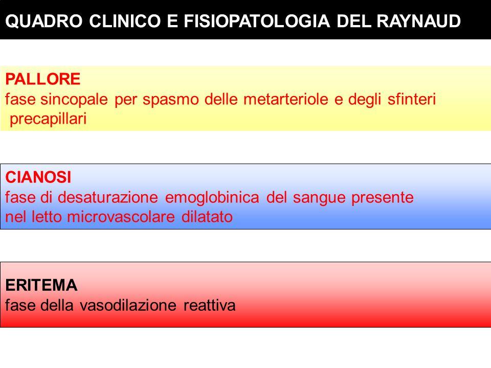 QUADRO CLINICO E FISIOPATOLOGIA DEL RAYNAUD PALLORE fase sincopale per spasmo delle metarteriole e degli sfinteri precapillari CIANOSI fase di desatur