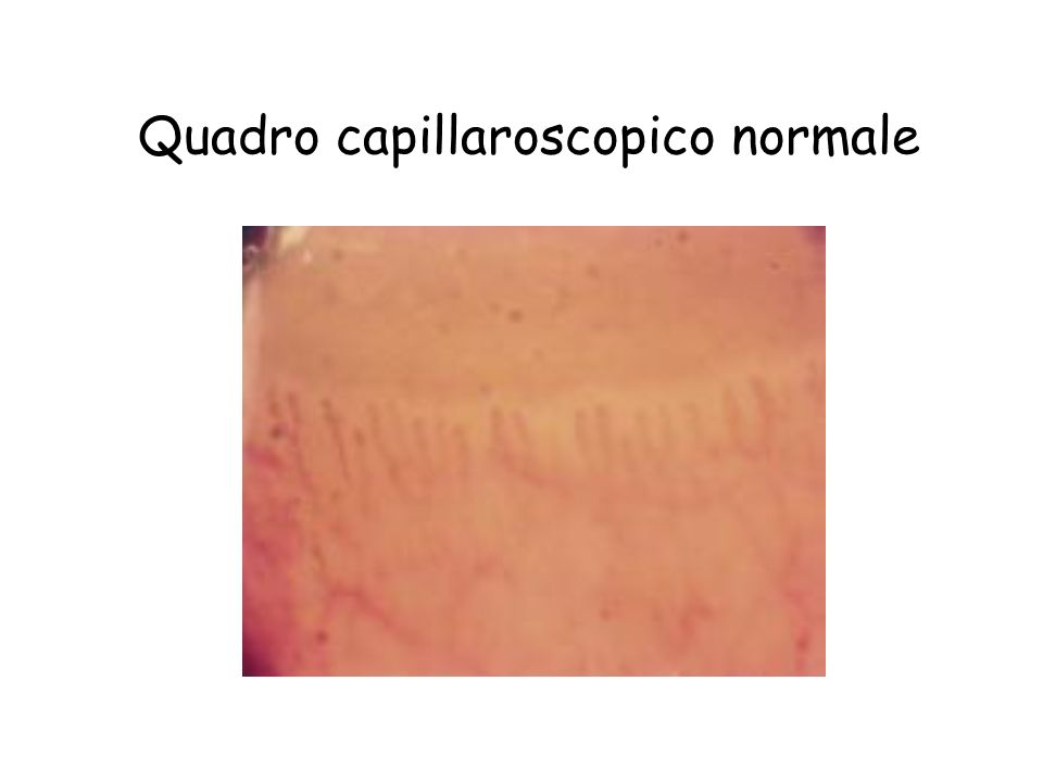 Quadro capillaroscopico normale