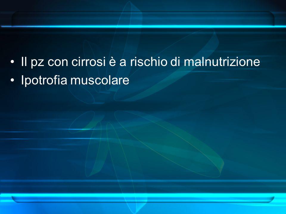 Il pz con cirrosi è a rischio di malnutrizione Ipotrofia muscolare