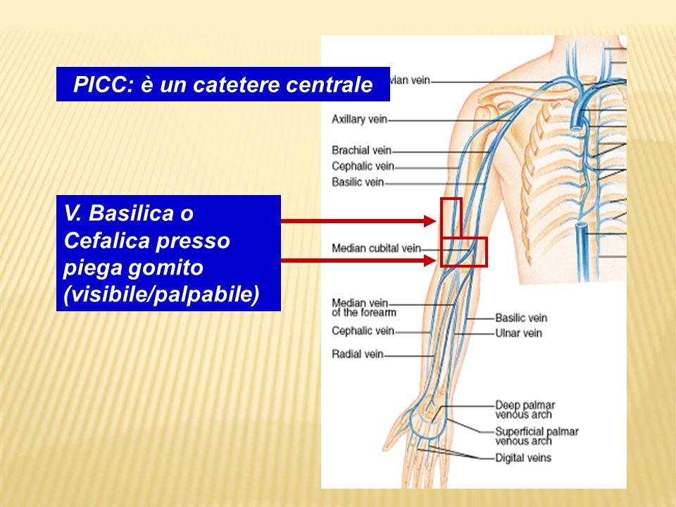 PICC: è un catetere centrale V. Basilica o Cefalica presso piega gomito (visibile/palpabile)
