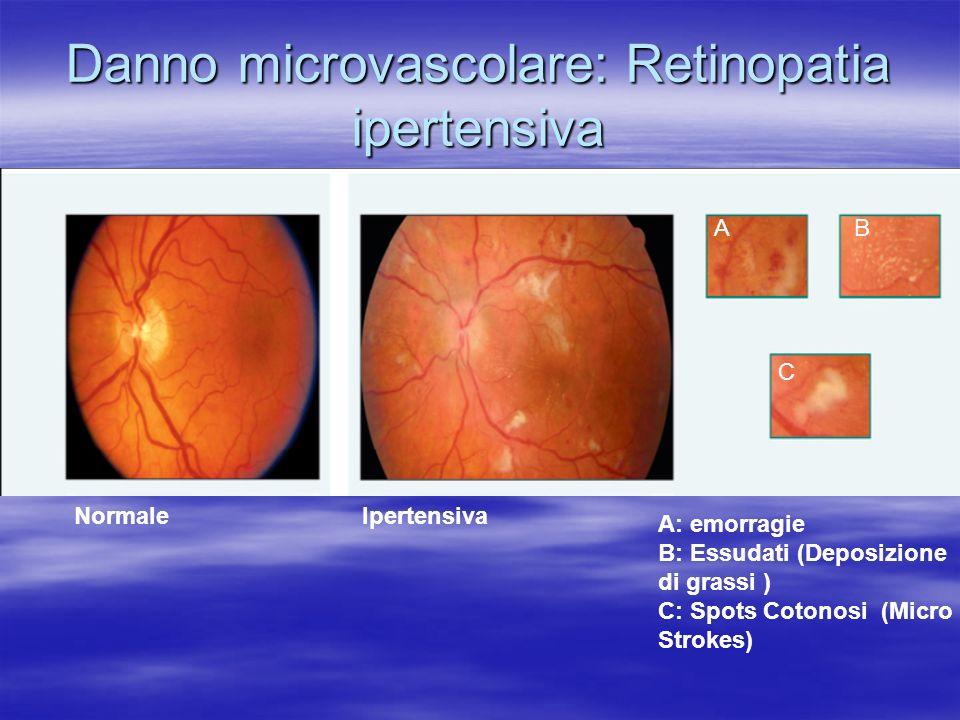 Danno microvascolare: Retinopatia ipertensiva NormaleIpertensiva A: emorragie B: Essudati (Deposizione di grassi ) C: Spots Cotonosi (Micro Strokes) A