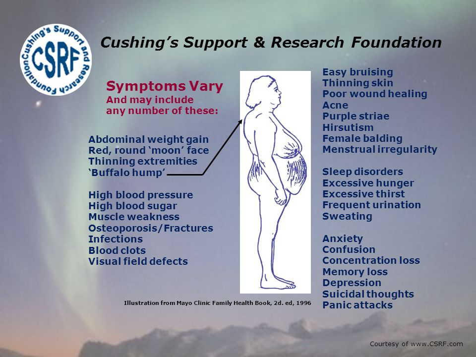 Cushings Support & Research Foundation Abdominal weight gain Red, round moon face Thinning extremities Buffalo hump High blood pressure High blood sugar Muscle weakness Osteoporosis/Fractures Infections Blood clots Visual field defects Easy bruising Thinning skin Poor wound healing Acne Purple striae Hirsutism Female balding Menstrual irregularity Sleep disorders Excessive hunger Excessive thirst Frequent urination Sweating Anxiety Confusion Concentration loss Memory loss Depression Suicidal thoughts Panic attacks Illustration from Mayo Clinic Family Health Book, 2d.