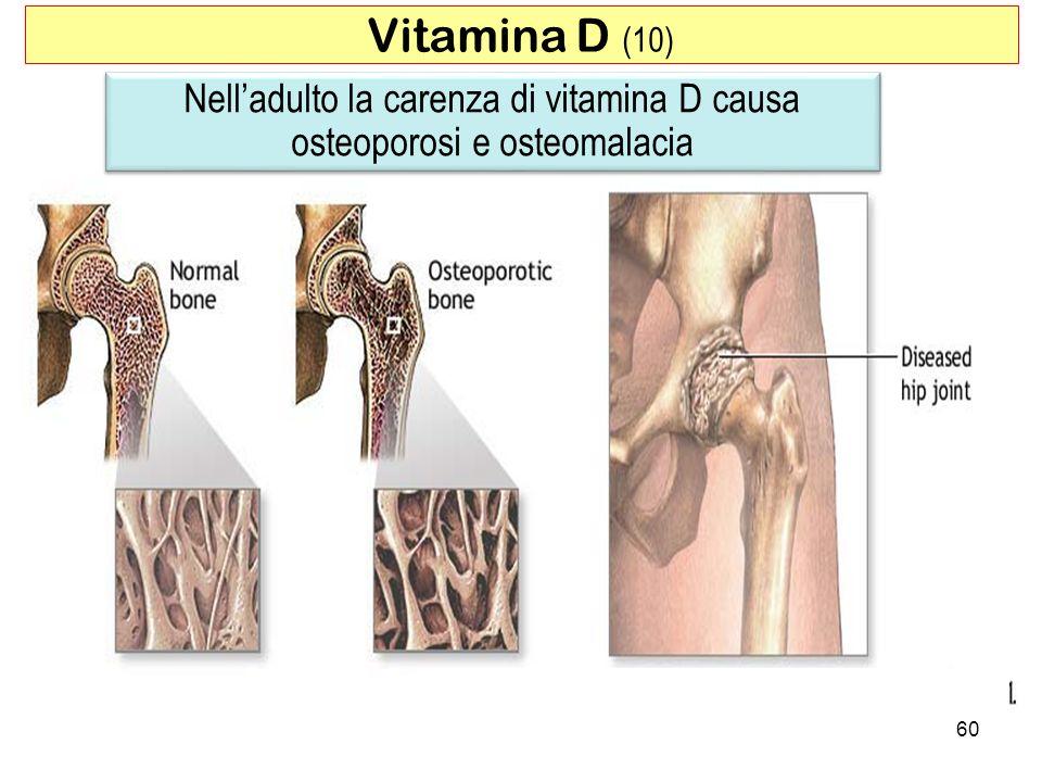 60 Nelladulto la carenza di vitamina D causa osteoporosi e osteomalacia Vitamina D (10)
