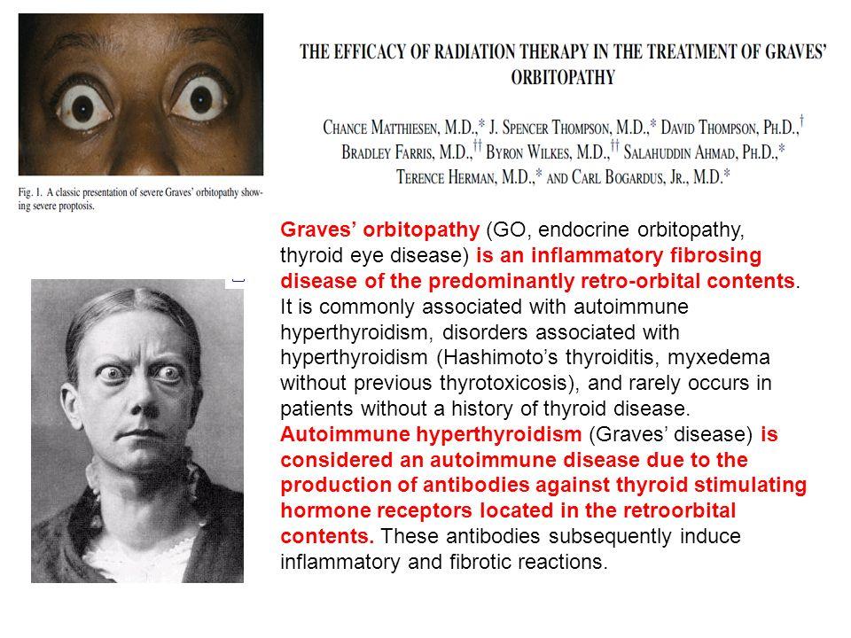 Methimazole Actions, Dosing, and Efficacy Il Trattamento con iodio radioattivo è il trattamento di scelta nellipertiroidismo ma in alcuni casi il metimazolo è la terapia di scelta.