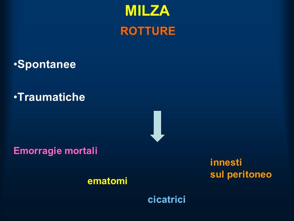 MILZA ROTTURE Spontanee Traumatiche Emorragie mortali ematomi cicatrici innesti sul peritoneo