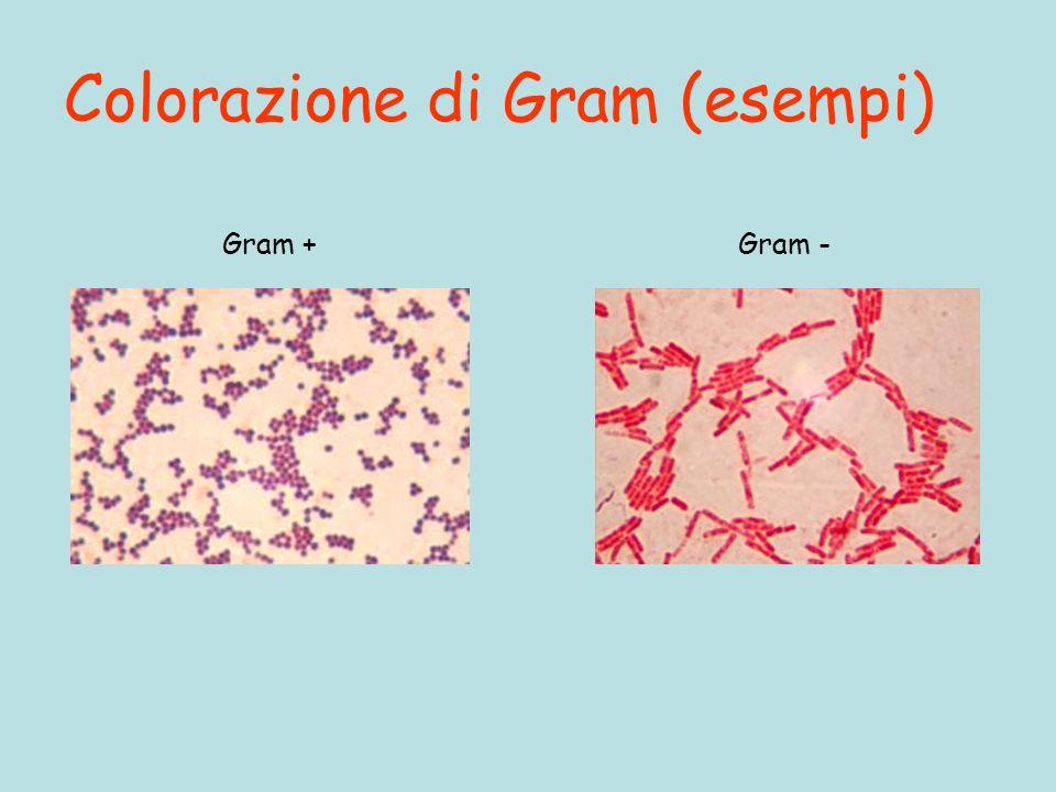 Colorazione di Gram (esempi) Gram +Gram -