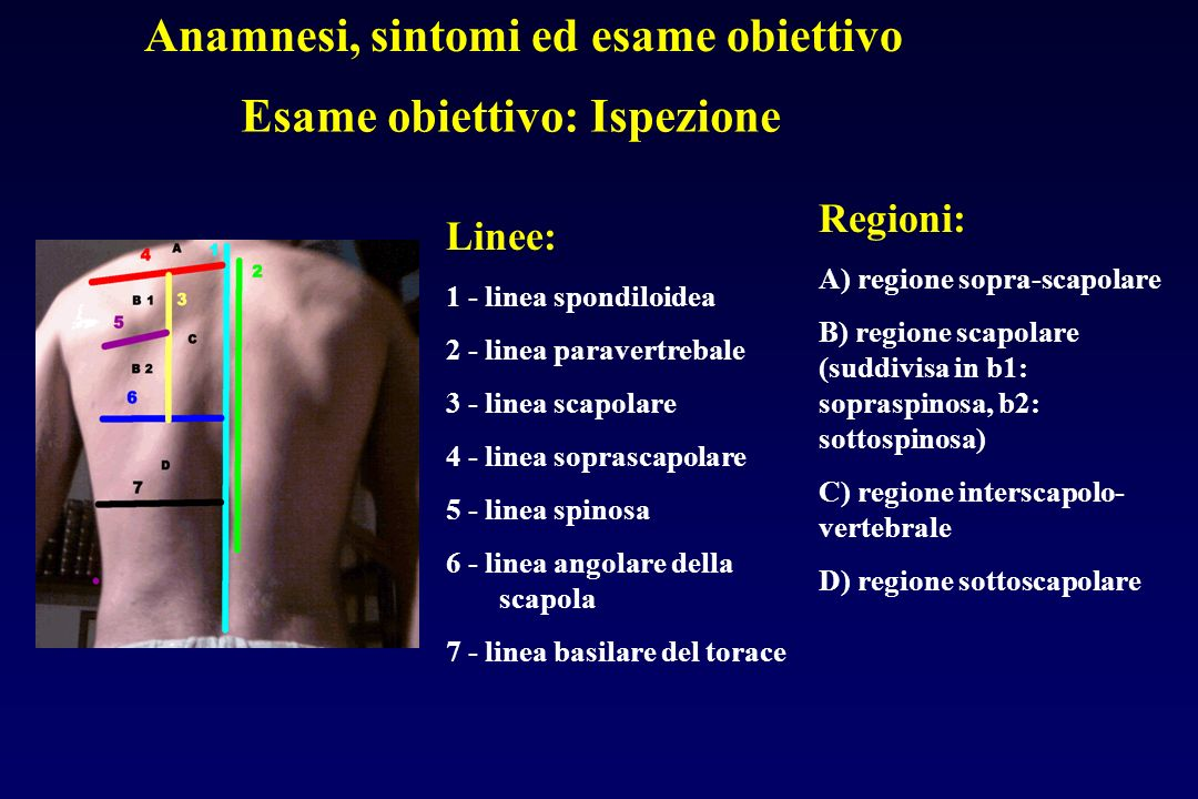 Anamnesi, sintomi ed esame obiettivo Esame obiettivo: Ispezione Linee: 1 - linea spondiloidea 2 - linea paravertrebale 3 - linea scapolare 4 - linea soprascapolare 5 - linea spinosa 6 - linea angolare della scapola 7 - linea basilare del torace Regioni: A) regione sopra-scapolare B) regione scapolare (suddivisa in b1: sopraspinosa, b2: sottospinosa) C) regione interscapolo- vertebrale D) regione sottoscapolare