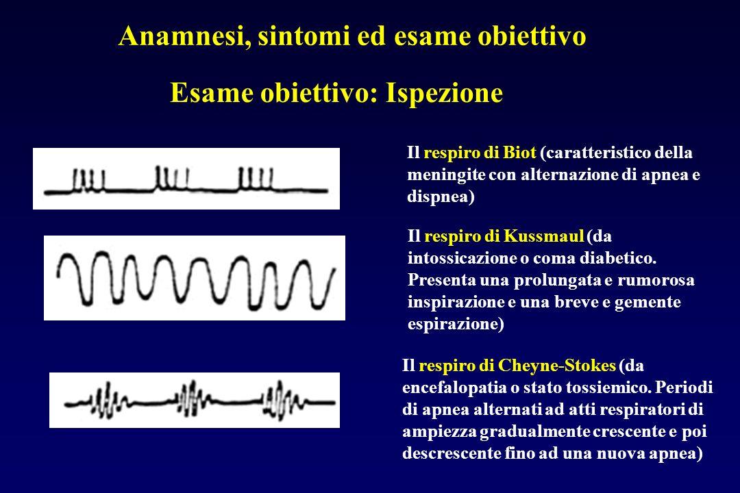 Esame obiettivo: Ispezione Il respiro di Biot (caratteristico della meningite con alternazione di apnea e dispnea) Anamnesi, sintomi ed esame obiettiv