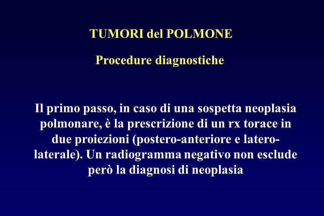 Procedure diagnostiche Il primo passo, in caso di una sospetta neoplasia polmonare, è la prescrizione di un rx torace in due proiezioni (postero-anter