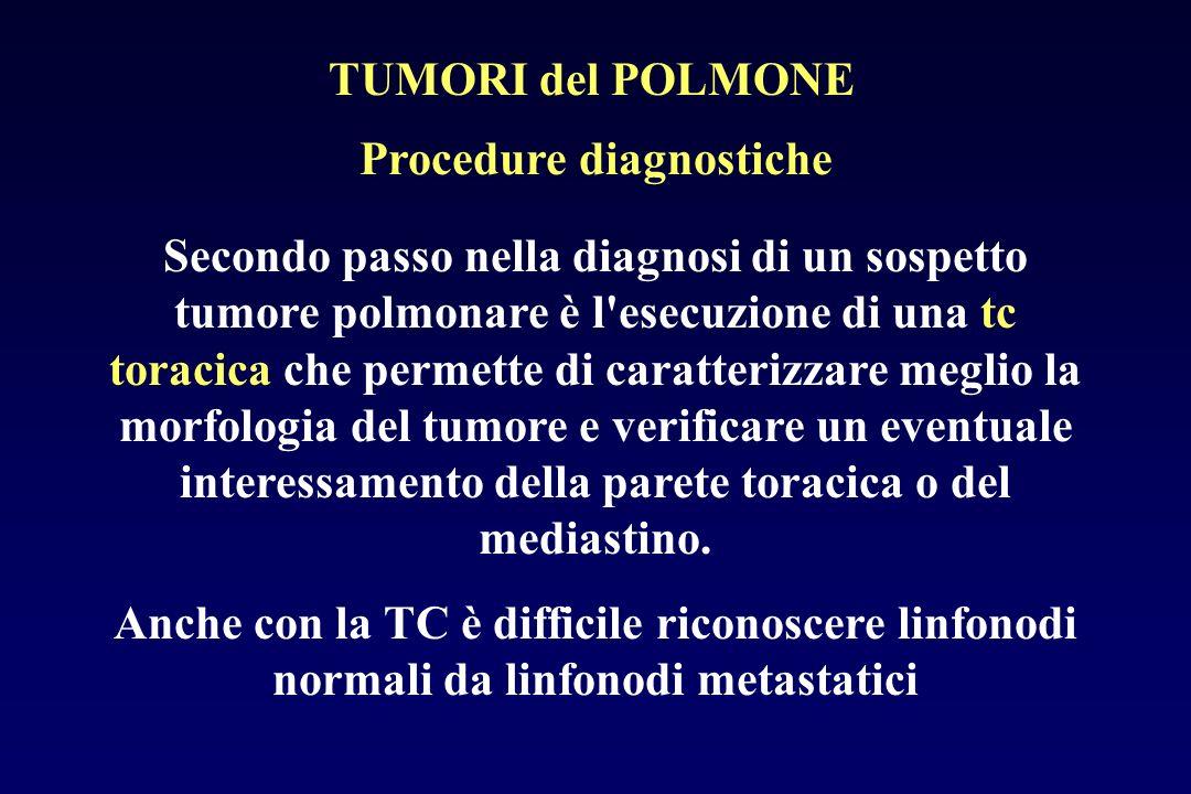 Procedure diagnostiche Secondo passo nella diagnosi di un sospetto tumore polmonare è l'esecuzione di una tc toracica che permette di caratterizzare m