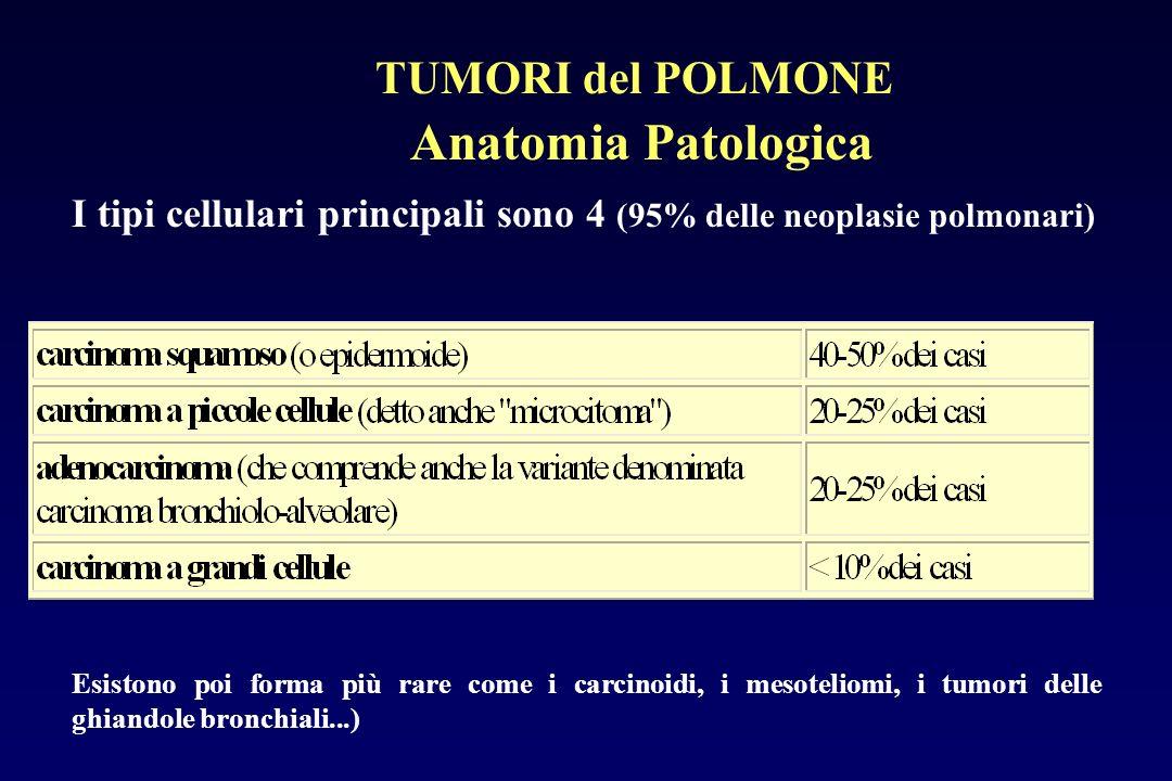 I tipi cellulari principali sono 4 (95% delle neoplasie polmonari) Anatomia Patologica Esistono poi forma più rare come i carcinoidi, i mesoteliomi, i