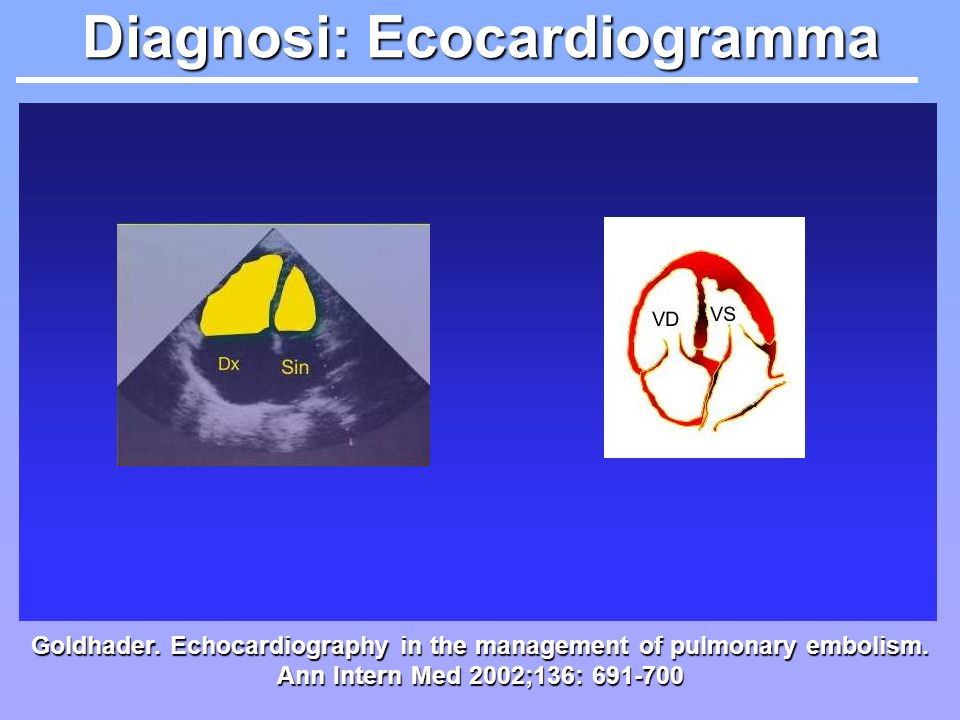 Diagnosi: Ecocardiogramma Goldhader. Echocardiography in the management of pulmonary embolism. Ann Intern Med 2002;136: 691-700