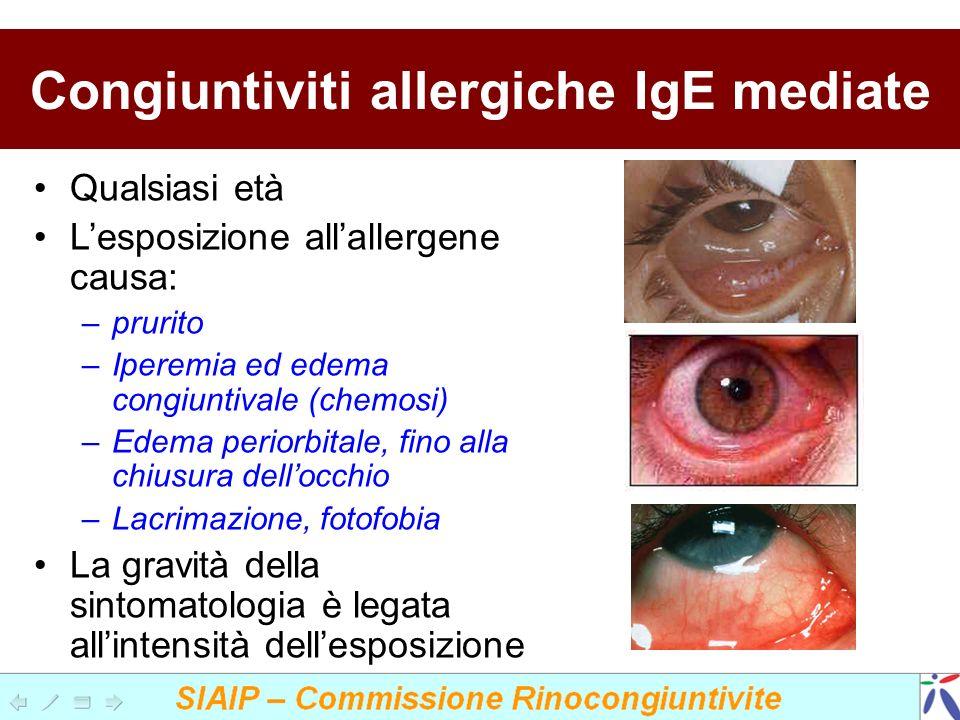 Congiuntiviti allergiche IgE mediate Qualsiasi età Lesposizione allallergene causa: –prurito –Iperemia ed edema congiuntivale (chemosi) –Edema periorb