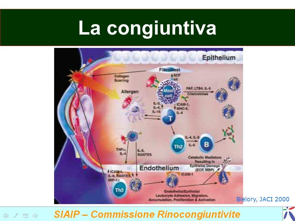 Cheratocono Ulcere corneli Trantas dots (Horners point) Cheratocongiuntivite atopica fluoresceina