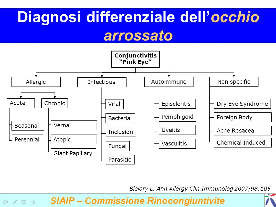 Diagnosi differenziale dellocchio arrossato Conjunctivitis Pink Eye Allergic Infectious Autoimmune Non specific Acute Chronic Seasonal Perennial Vernal Atopic Giant Papillary Viral Bacterial Inclusion Fungal Parasitic Episcleritis Pemphigoid Uveitis Vasculitis Dry Eye Syndrome Foreign Body Acne Rosacea Chemical Induced Bielory L.