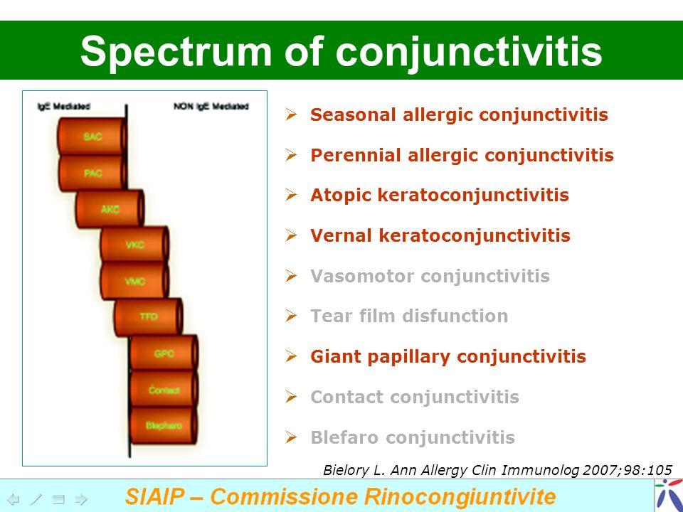 Seasonal allergic conjunctivitis Perennial allergic conjunctivitis Atopic keratoconjunctivitis Vernal keratoconjunctivitis Vasomotor conjunctivitis Te