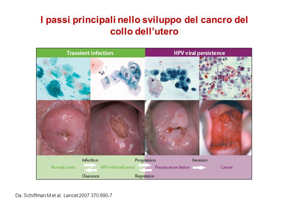 I passi principali nello sviluppo del cancro del collo dellutero Da: Schiffman M et al. Lancet 2007 370:890-7