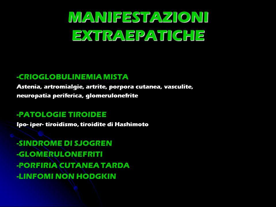 MANIFESTAZIONI EXTRAEPATICHE -CRIOGLOBULINEMIA MISTA Astenia, artromialgie, artrite, porpora cutanea, vasculite, neuropatia periferica, glomerulonefri