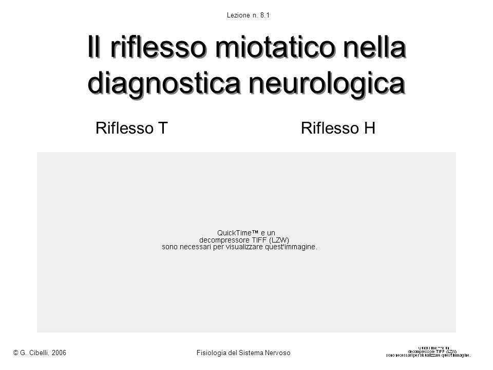 Il riflesso miotatico nella diagnostica neurologica Riflesso TRiflesso H © G. Cibelli, 2006 Fisiologia del Sistema Nervoso Lezione n. 8.1