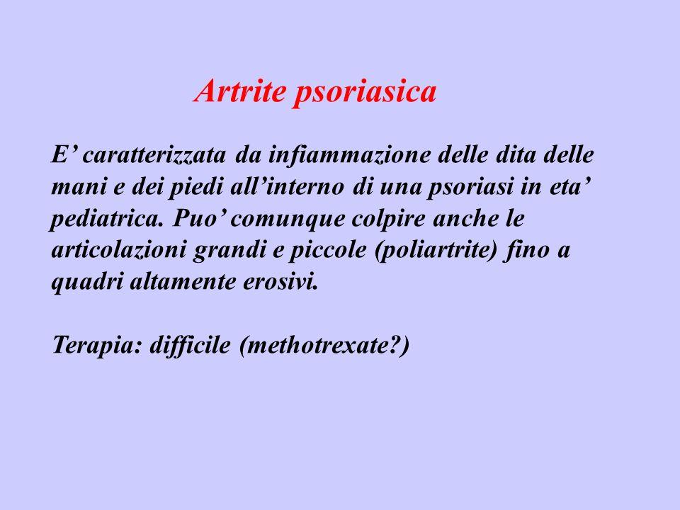 Artrite psoriasica E caratterizzata da infiammazione delle dita delle mani e dei piedi allinterno di una psoriasi in eta pediatrica. Puo comunque colp