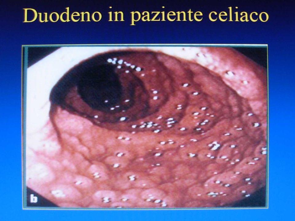 COMPONENTE GENETICA La celiachia è una malattia con forte componente genetica, e concordanza molto elevata tra gemelli monozigoti.