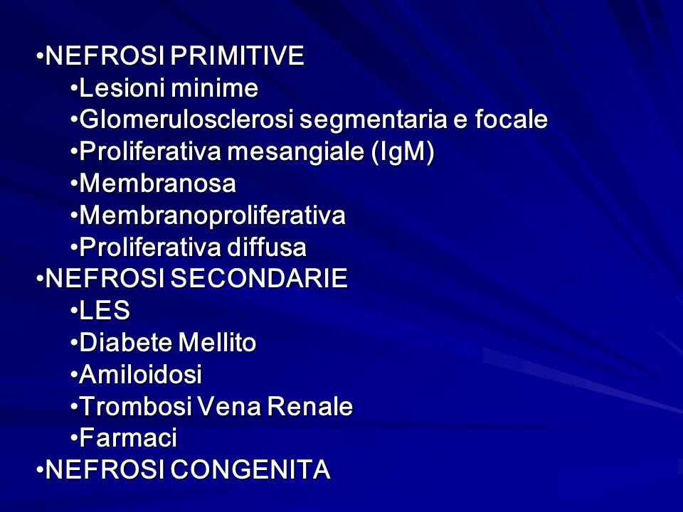 NEFROSI PRIMITIVENEFROSI PRIMITIVE Lesioni minimeLesioni minime Glomerulosclerosi segmentaria e focaleGlomerulosclerosi segmentaria e focale Prolifera