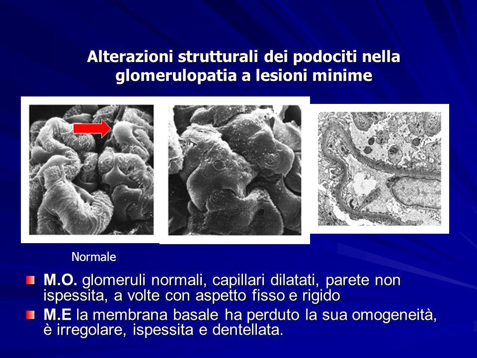 Alterazioni strutturali dei podociti nella glomerulopatia a lesioni minime Normale M.O. glomeruli normali, capillari dilatati, parete non ispessita, a