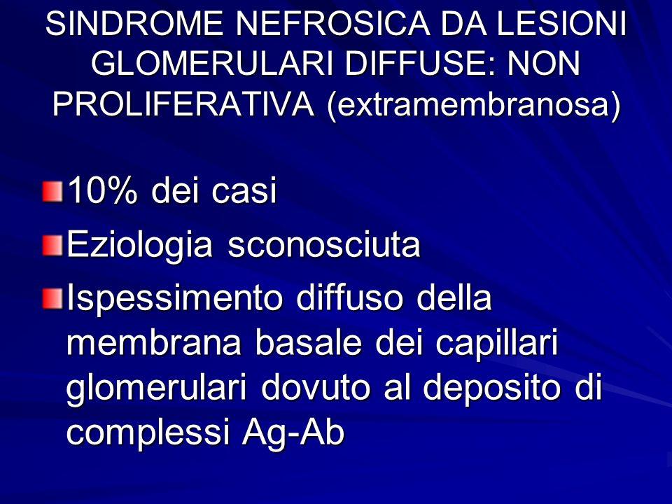 10% dei casi Eziologia sconosciuta Ispessimento diffuso della membrana basale dei capillari glomerulari dovuto al deposito di complessi Ag-Ab SINDROME