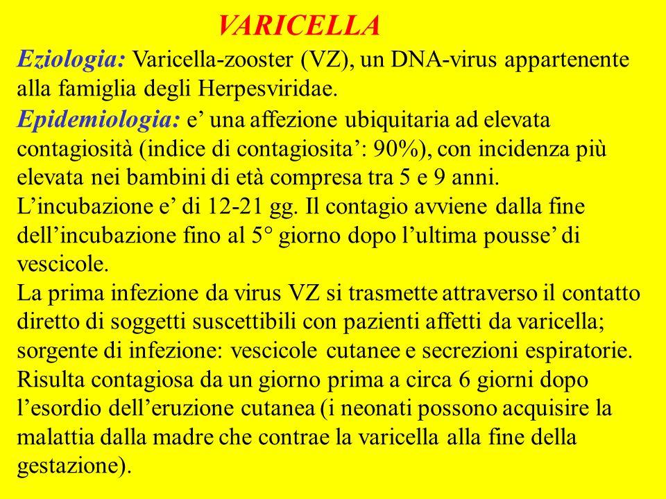 VARICELLA Eziologia: Varicella-zooster (VZ), un DNA-virus appartenente alla famiglia degli Herpesviridae. Epidemiologia: e una affezione ubiquitaria a