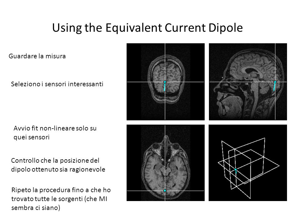 Using the Equivalent Current Dipole Guardare la misura Seleziono i sensori interessanti Avvio fit non-lineare solo su quei sensori Controllo che la po