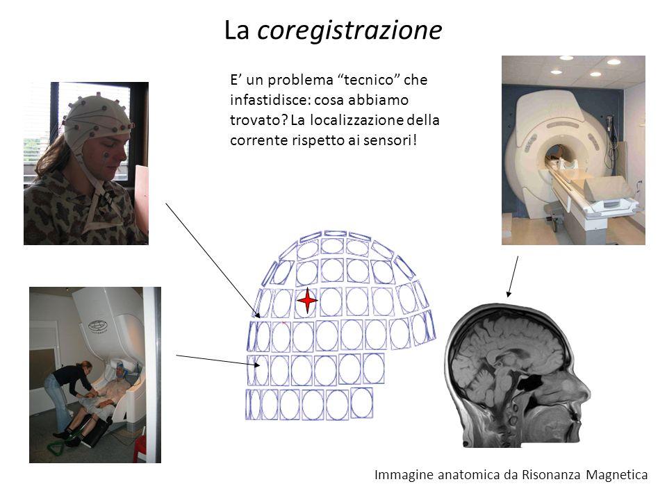 La coregistrazione E un problema tecnico che infastidisce: cosa abbiamo trovato? La localizzazione della corrente rispetto ai sensori! Immagine anatom