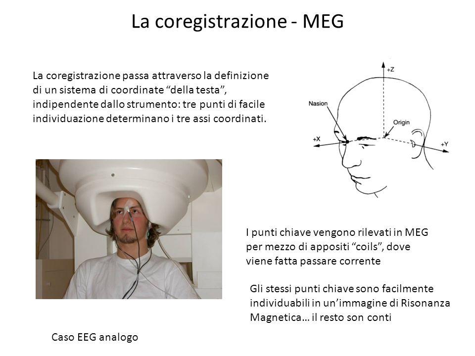 La coregistrazione - MEG La coregistrazione passa attraverso la definizione di un sistema di coordinate della testa, indipendente dallo strumento: tre
