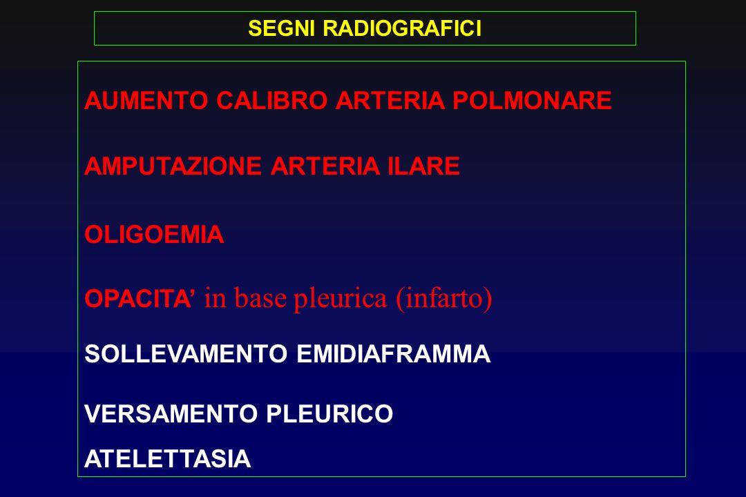 SEGNI RADIOGRAFICI AUMENTO CALIBRO ARTERIA POLMONARE AMPUTAZIONE ARTERIA ILARE OLIGOEMIA OPACITA in base pleurica (infarto) SOLLEVAMENTO EMIDIAFRAMMA VERSAMENTO PLEURICO ATELETTASIA