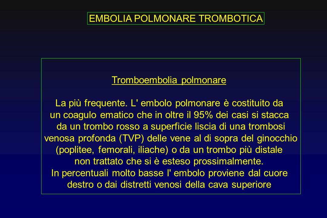 1.Embolia adiposa 2.Embolia da liquido amniotico 3.Embolia gassosa 4.Embolia settica 5.Embolia tumorale EMBOLIA POLMONARE NON TROMBOTICA