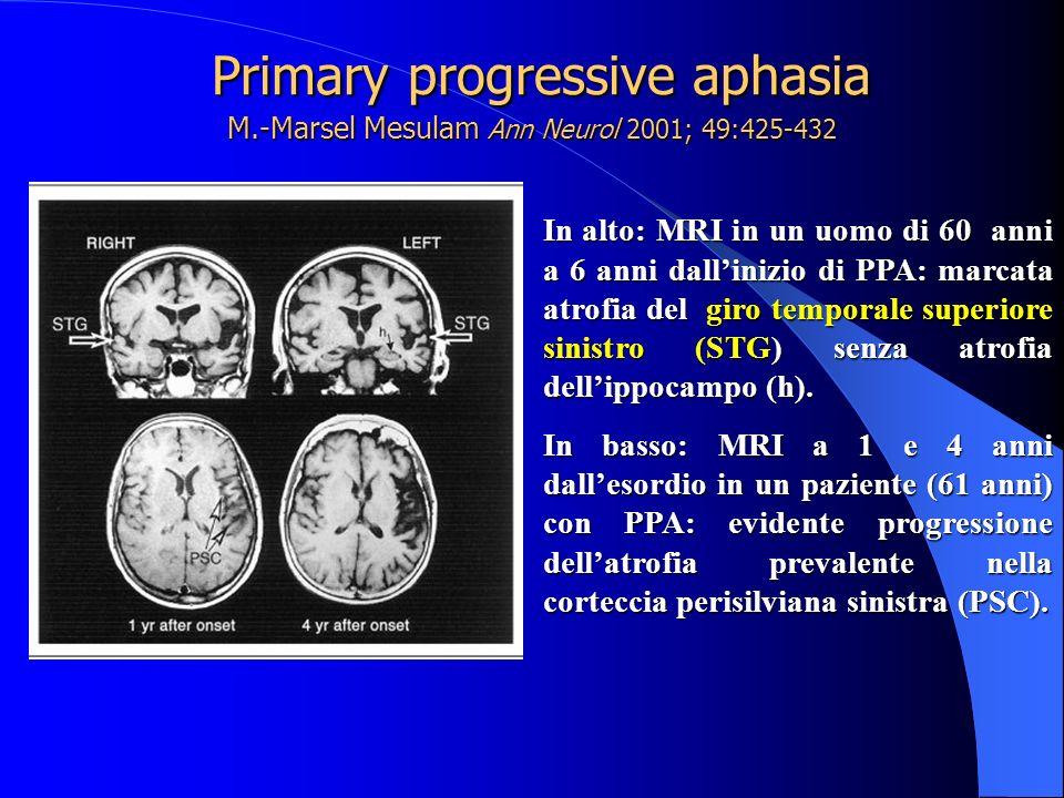 Primary progressive aphasia M.-Marsel Mesulam Ann Neurol 2001; 49:425-432 Primary progressive aphasia M.-Marsel Mesulam Ann Neurol 2001; 49:425-432 In