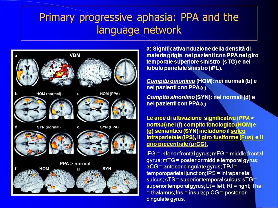 Primary progressive aphasia: PPA and the language network a a: Significativa riduzione della densità di materia grigia nei pazienti con PPA nel giro t