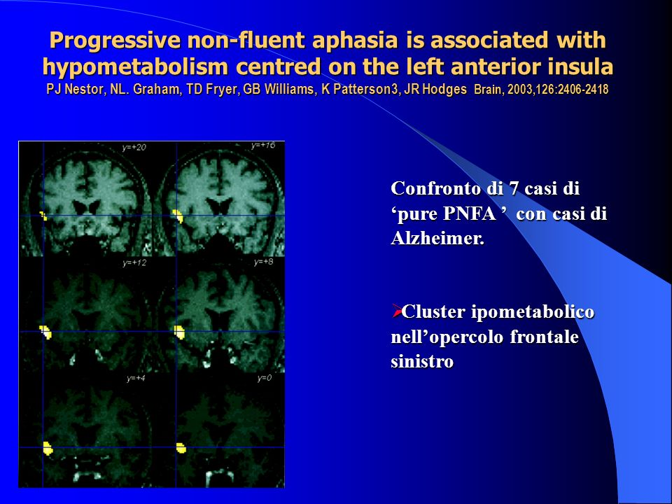 Progressive non-fluent aphasia is associated with hypometabolism centred on the left anterior insula PJ Nestor, NL. Graham, TD Fryer, GB Williams, K P