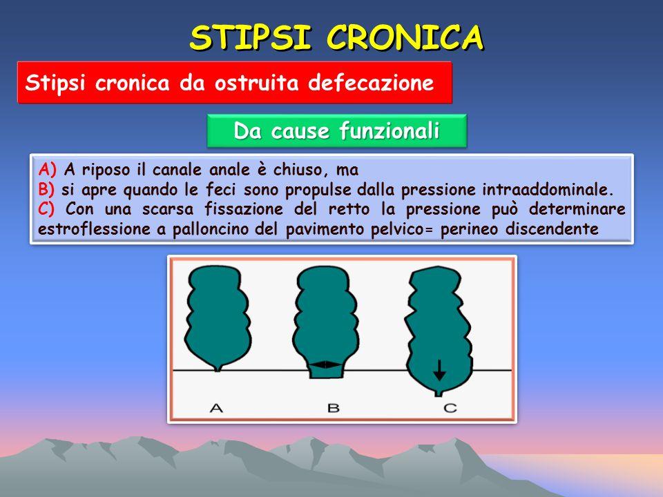 STIPSI CRONICA Stipsi cronica da ostruita defecazione Da cause funzionali A) A riposo il canale anale è chiuso, ma B) si apre quando le feci sono propulse dalla pressione intraaddominale.