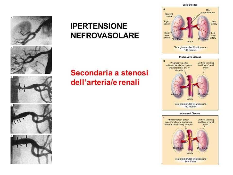 IPERTENSIONE NEFROVASOLARE Secondaria a stenosi dellarteria/e renali