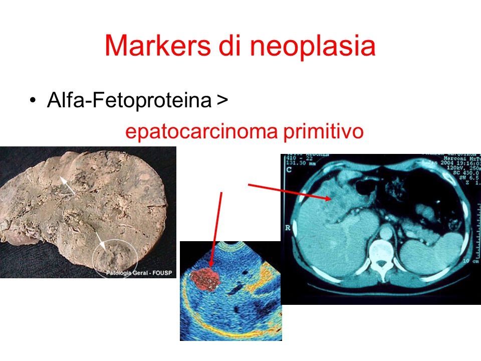 ACUTA < 6 mesi Epatitica: ALT Mista: ALT ALP 1.IgM anti-HAV 6.
