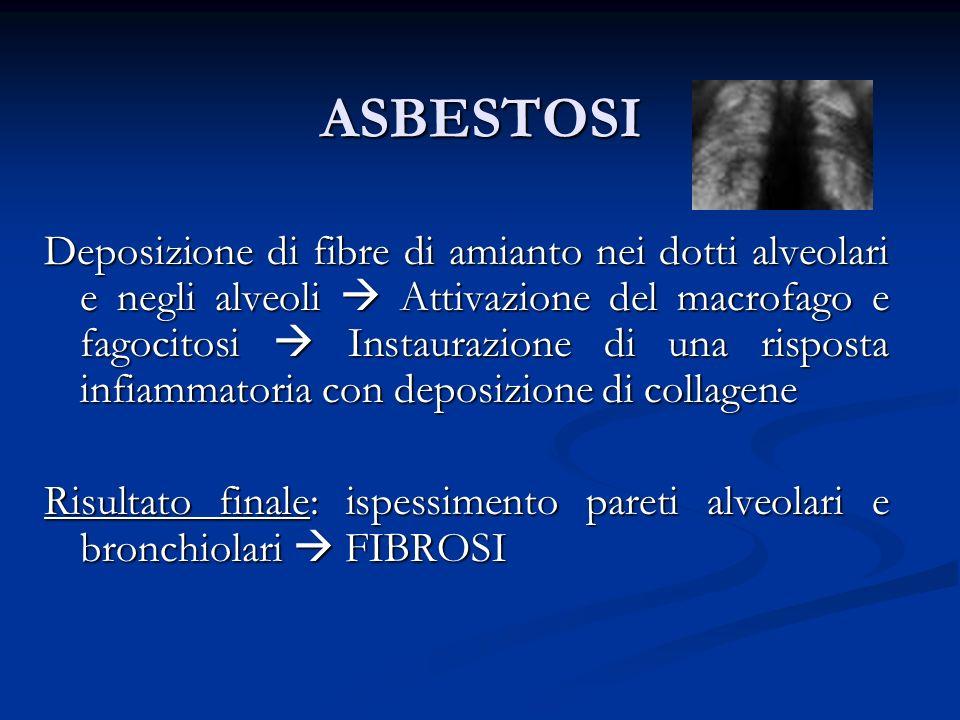 ASBESTOSI Deposizione di fibre di amianto nei dotti alveolari e negli alveoli Attivazione del macrofago e fagocitosi Instaurazione di una risposta inf