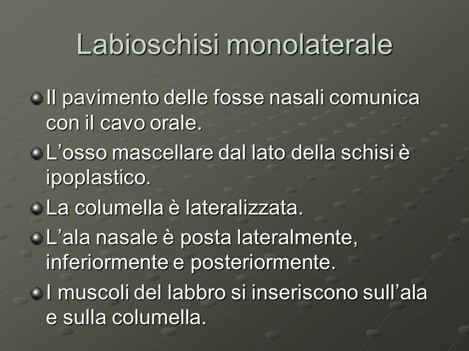 Labioschisi monolaterale Il pavimento delle fosse nasali comunica con il cavo orale. Losso mascellare dal lato della schisi è ipoplastico. La columell