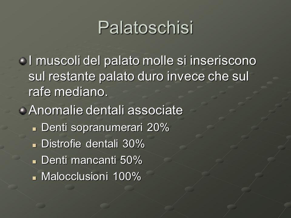 Palatoschisi I muscoli del palato molle si inseriscono sul restante palato duro invece che sul rafe mediano. Anomalie dentali associate Denti sopranum